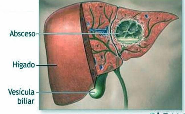el absceso hepático y todo lo que debes saber de su tratamiento