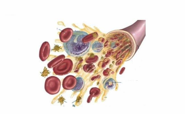 que es normocitosis normocromica