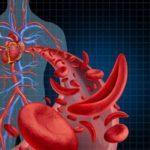 normocitosis-anemia-corazon-flujo-istock