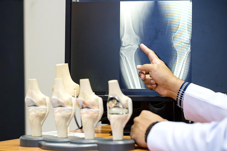 Traumatologo muestra radiografía y huesos